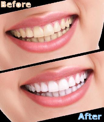Porzellan lumineer, keramikveneers, komposit veneer, ästhetische Digitale Zahnmedizin, notfal Zahnarzt.