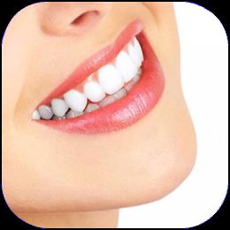 Porzellan lumineer, keramikveneers, komposit veneer, ästhetische Zahnmedizin